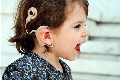 Lucha que conlleva lograr el implante coclear