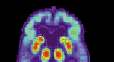 Efectos del alzhéimer serían más leves en personas bilingües