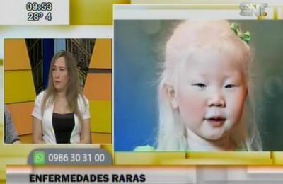 Descubre las enfermedades más raras en niños y niñas
