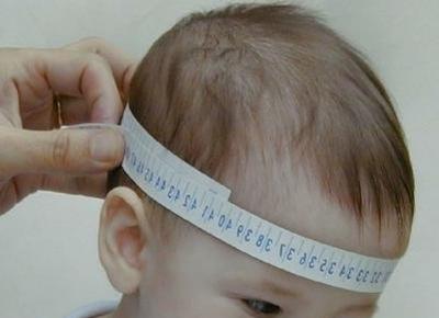 Estado de emergencia en Brasil: alarmante cifra de nacimientos con microcefalia