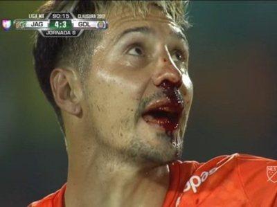 Jony Fabbro sufrió una criminal agresión