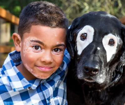Niño sale de la depresión al conocer a un perro con su misma enfermedad