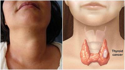 Ofrecen consultas gratuitas ante aumento del cáncer de tiroides