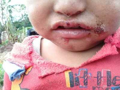 Cloaca enferma a niños en Pedro Juan