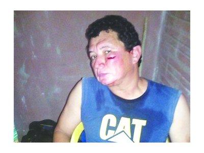Le rompieron la cara a un árbitro en JAS
