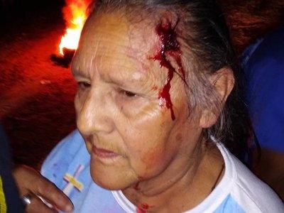 """Tres abuelos heridos en manifestación """"pacífica"""" en Humaitá"""
