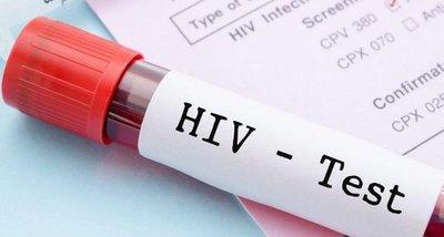 Logran eliminar el VIH en seis pacientes con el trasplante de células madre