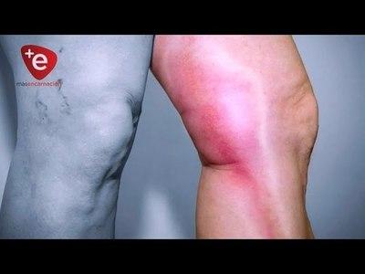 Trombosis, enfermedad que causa miles de muertes al año