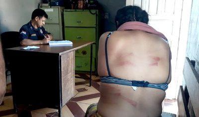 Adolescentes denunciaron a su madre y padrastro por pegarles con manguera
