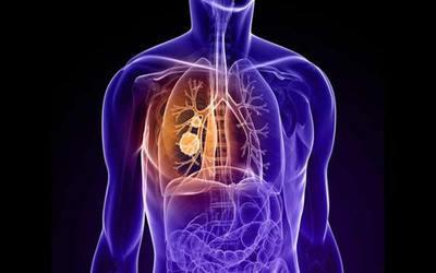 Aseguran que el cáncer de pulmón es el más mortal