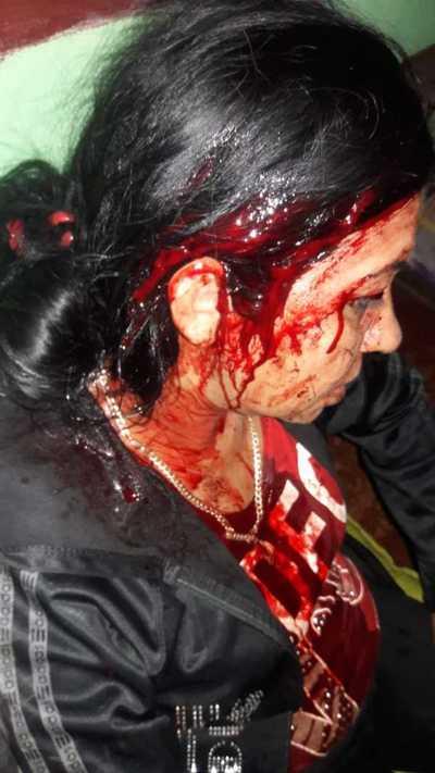 Policía detenido por golpear a su pareja – Prensa 5