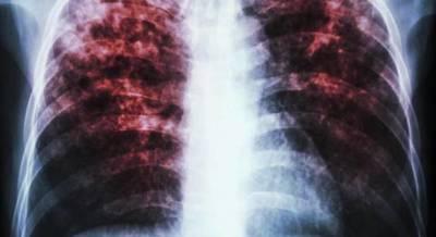 Buscan que cada región sanitaria tenga equipo para diagnosticar la tuberculosis
