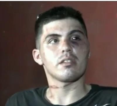 """Brutal golpiza de policías a joven: """"Me pegaron, me ahorcaron y me patearon"""""""