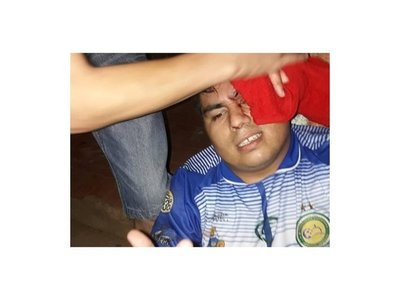 Arquero caacupeño quedó con la cabeza rota tras ataque de hinchas