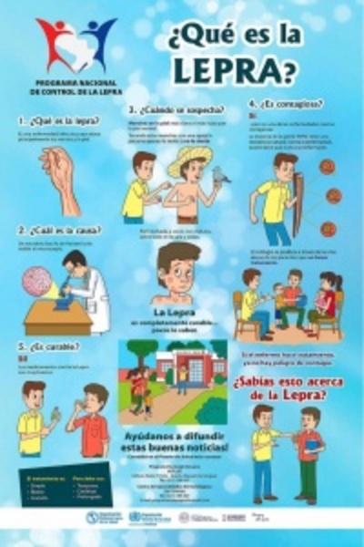 La lepra tiene cura: Instan al diagnóstico