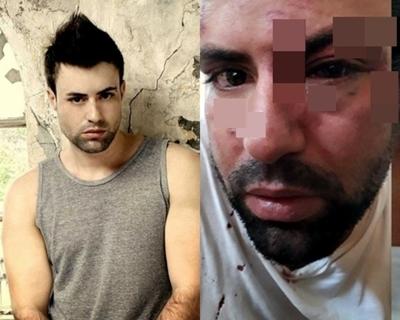"""""""El Cubano"""" asegura que sus agresores no cumplen con prisión domiciliaria"""
