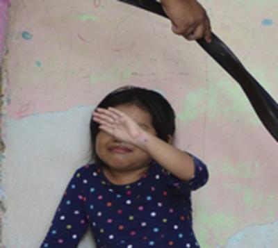 Rescatan a niña de tres años que fue víctima de brutal maltrato
