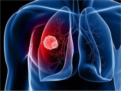 Desarrollan nuevo fármaco para inhibir un gen clave en la mayoría de tumores