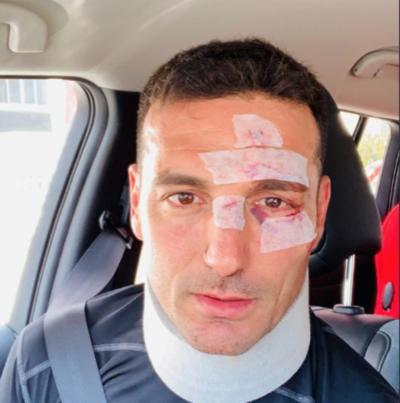 HOY / Scaloni recibió el alta médica tras estar en observación