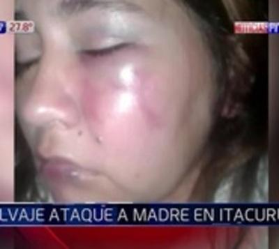 Mujer denuncia salvaje golpiza propinada por su expareja