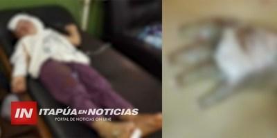 BEBAS QUEMADAS CON ACEITE HIRVIENDO SE RECUPERAN.
