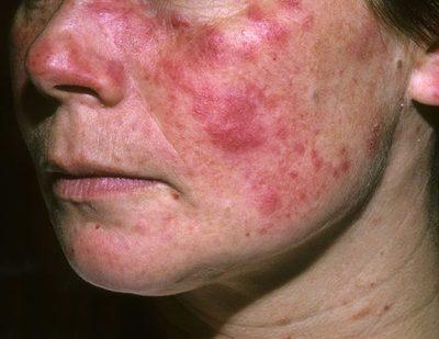 El Día Mundial del Lupus en el Hospital de Clínicas