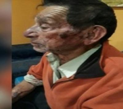 Malvivientes agreden brutalmente a abuelo para robarle G. 2 millones