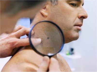 """Presentan nueva terapia """"efectiva"""" contra el cáncer de piel"""