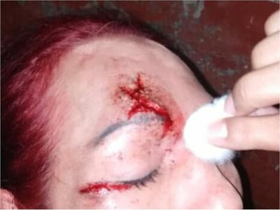 Cuatro hombres golpearon con varilla de hierro a un travesti