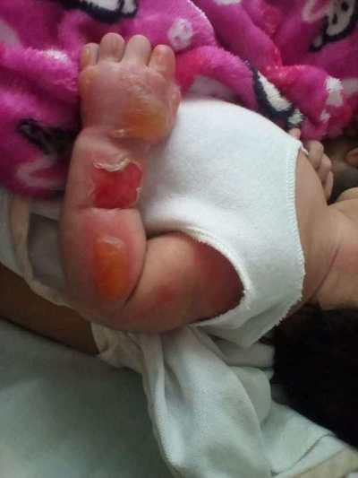 Denuncian grave quemadura de recién nacida