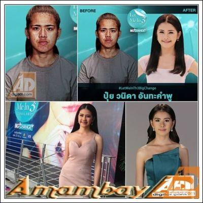 Le decían «mentón de bruja» por su apariencia. Se operó y hoy es conocida como «diosa tailandesa»