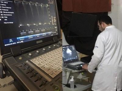 Habilitaron servicio de ecocardiograma en el Hospital Regional