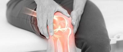 Crean un novedoso hidrogel que ayuda a regenerar el cartílago en artrosis de rodilla