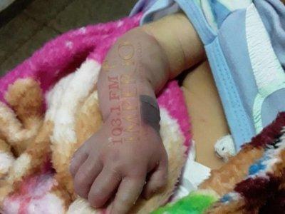 Recién nacido podría perder el bracito por presunta mala praxis