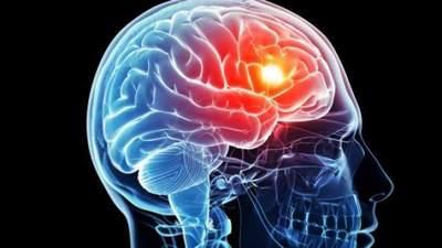 Descubren, tras 18 años, el gen responsable de causar la esquizofrenia