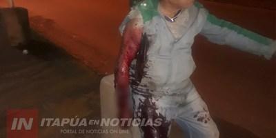 AMPUTAN EL BRAZO AL HOMBRE ATACADO POR EL ROTTWEILLER EN SAN ISIDRO.