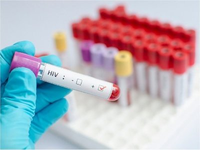 Lucha mundial contra el sida se desacelera, alerta ONU