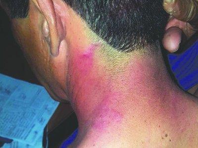 Duro relato del árbitro agredido en Yaguarón