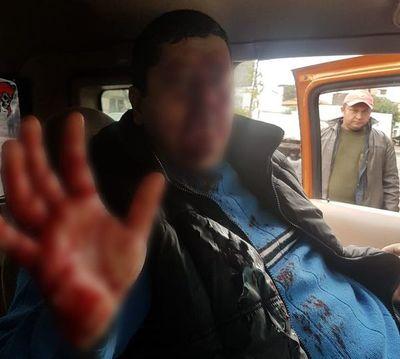 Otro furioso al volante: Agredió a conductor con manopla