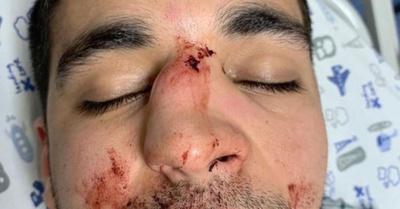 Brutal agresión de un joven en una discoteca