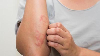 Clínicas: Aumentan las consultas por lesiones en la piel de manos y pies