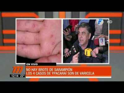 Desmienten brote de sarampión en Paraguay