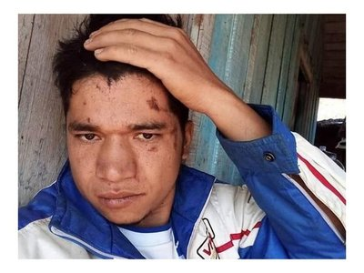 Yacaré, el loco de las calzas, iba en moto y cayó al arroyo