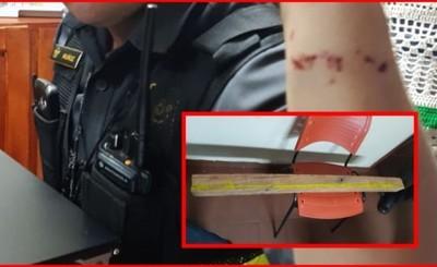 Agente de la Caminera es agredido con un trozo de madera