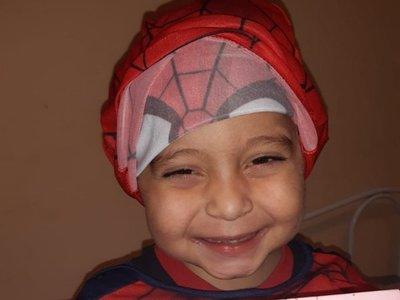 """""""Spiderman"""" recibió un trasplante de hígado"""
