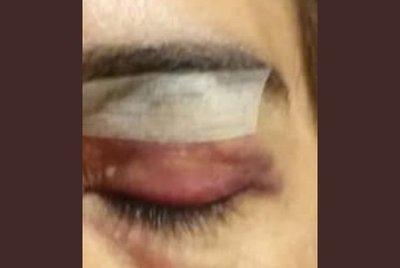 Mujer denuncia que guardias de una empresa la agredieron brutalmente