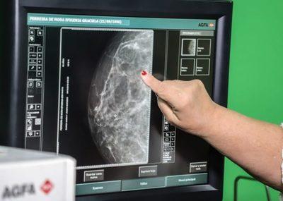 Si un familiar tuvo cáncer de mama, mucha atención