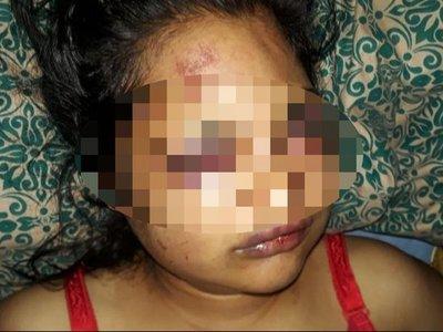 Encerró a su ex y la golpeó hasta desfigurarle el rostro