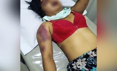 Raptó a su ex pareja, la golpeó salvajemente y la abandonó en Minga