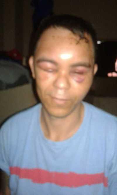 Denuncian que recluso fue golpeado y no asistido